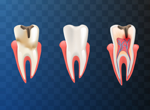 Root Canal Dentist Melbourne CBD | Root Canal Treatment Melbourne & VIC