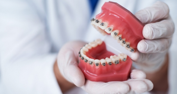 Traditional Braces in Melbourne