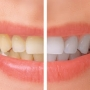 5 Habits That Can Stain Teeth